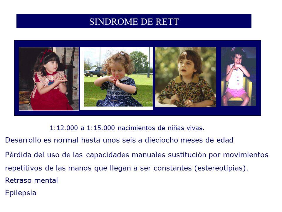 SINDROME DE RETT 1:12.000 a 1:15.000 nacimientos de niñas vivas. Desarrollo es normal hasta unos seis a dieciocho meses de edad.