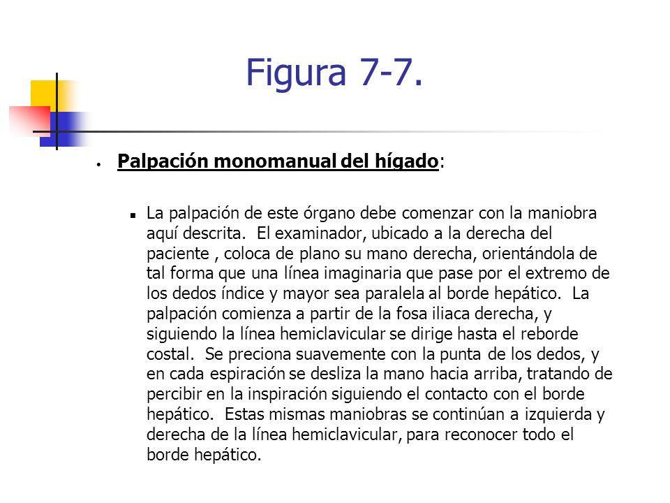 Figura 7-7. Palpación monomanual del hígado:
