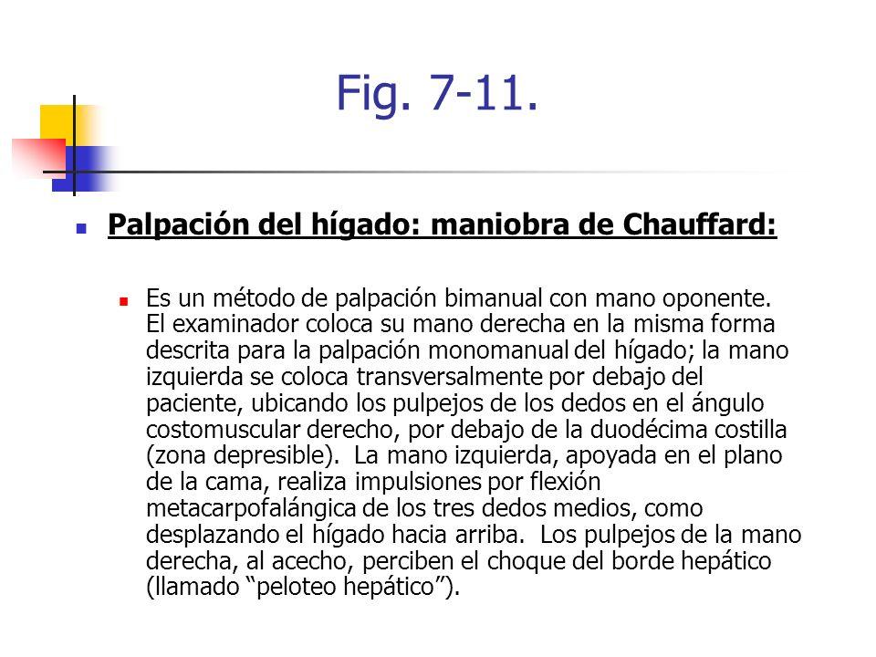 Fig. 7-11. Palpación del hígado: maniobra de Chauffard: