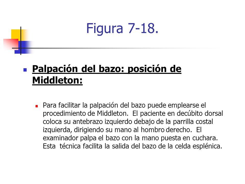 Figura 7-18. Palpación del bazo: posición de Middleton: