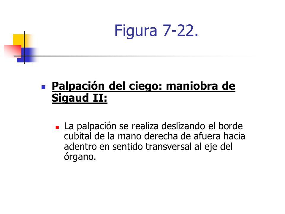 Figura 7-22. Palpación del ciego: maniobra de Sigaud II: