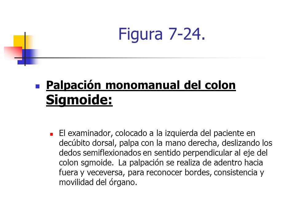 Figura 7-24. Palpación monomanual del colon Sigmoide: