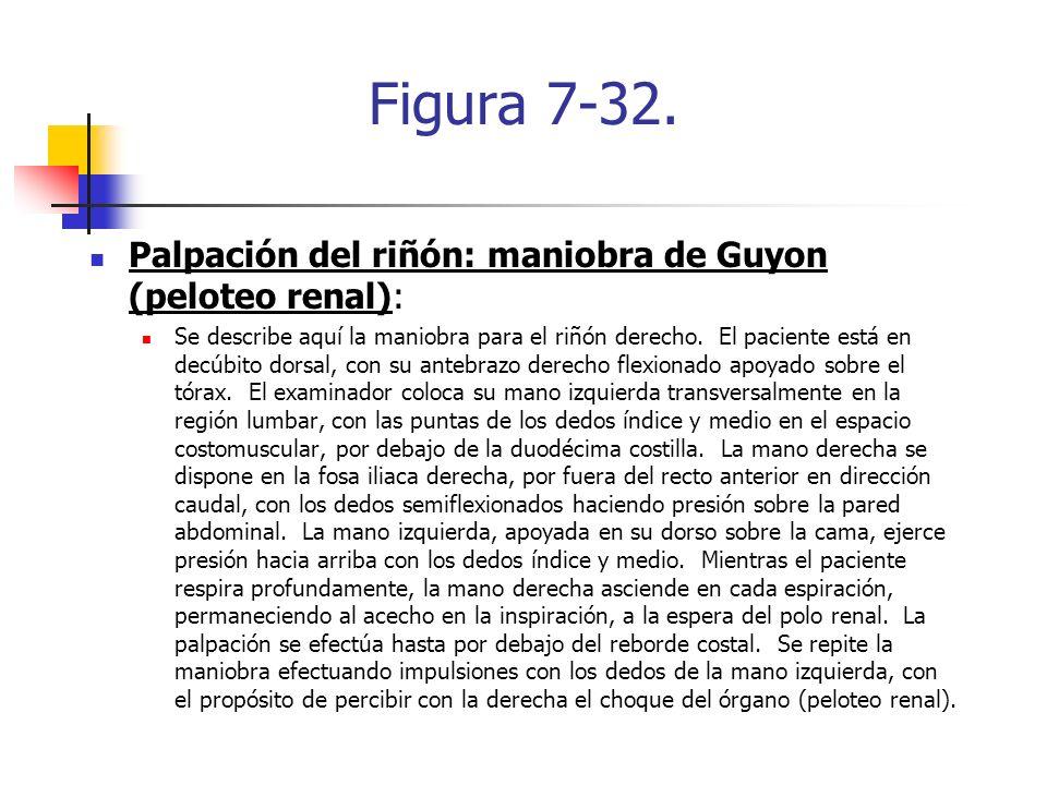 Figura 7-32. Palpación del riñón: maniobra de Guyon (peloteo renal):