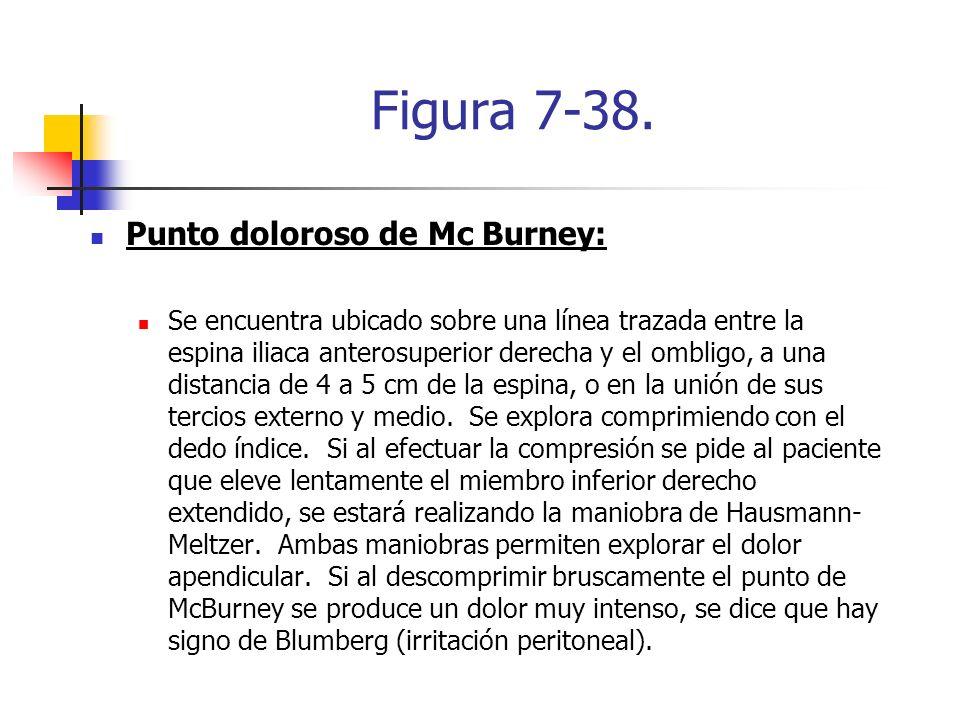 Figura 7-38. Punto doloroso de Mc Burney: