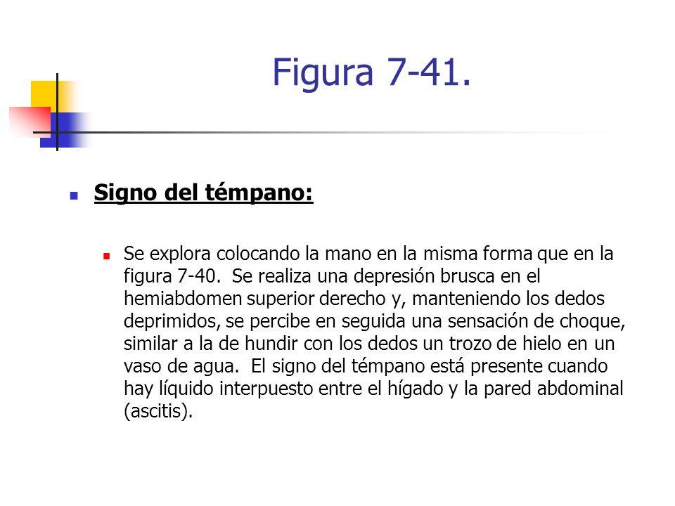 Figura 7-41. Signo del témpano: