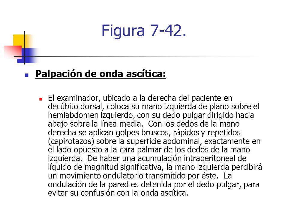 Figura 7-42. Palpación de onda ascítica: