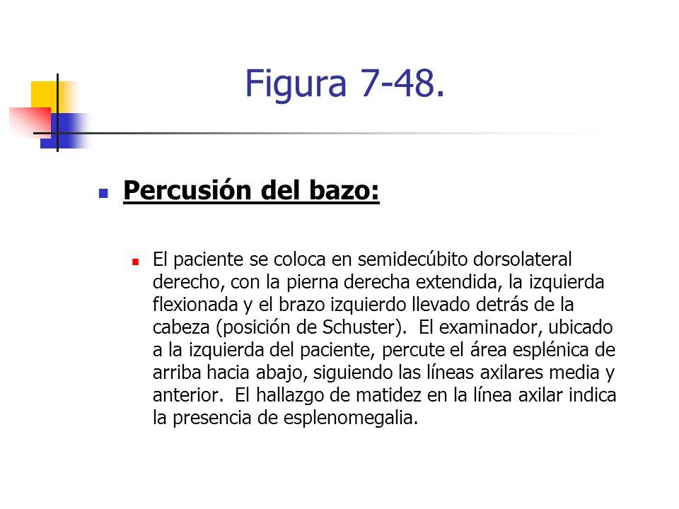 Figura 7-48. Percusión del bazo: