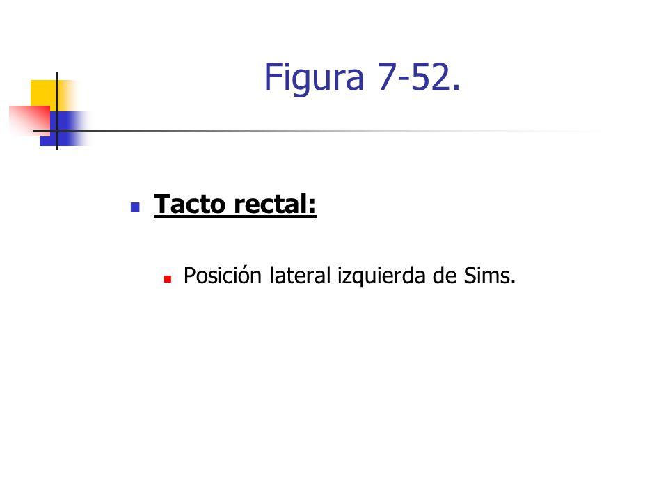 Figura 7-52. Tacto rectal: Posición lateral izquierda de Sims.
