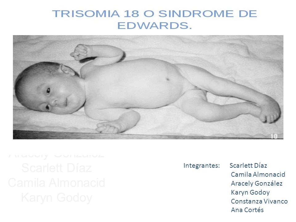 Síndrome de Edwards Ana Belén Cortés Aracely González Scarlett Díaz