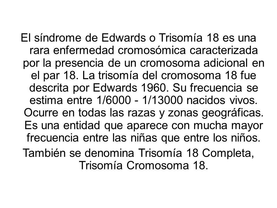 También se denomina Trisomía 18 Completa, Trisomía Cromosoma 18.