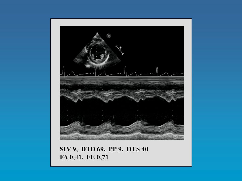 SIV 9, DTD 69, PP 9, DTS 40 FA 0,41. FE 0,71