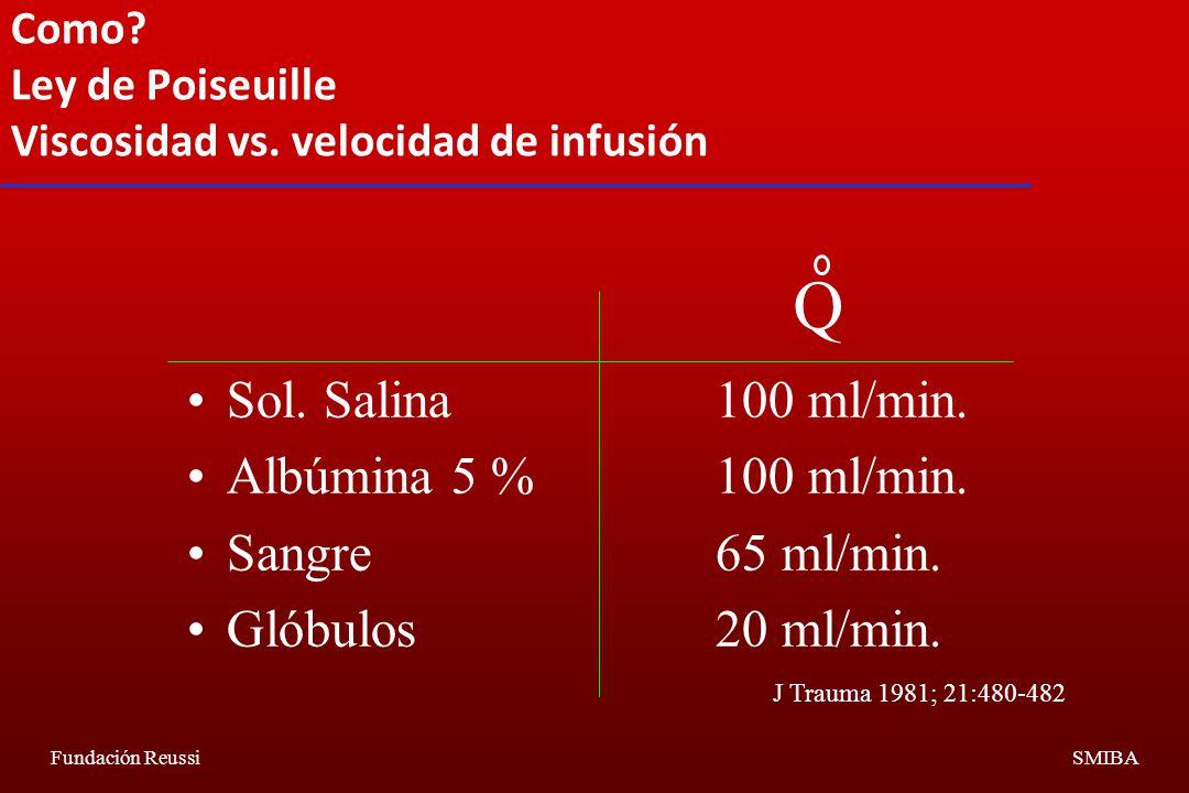 Como Ley de Poiseuille Viscosidad vs. velocidad de infusión