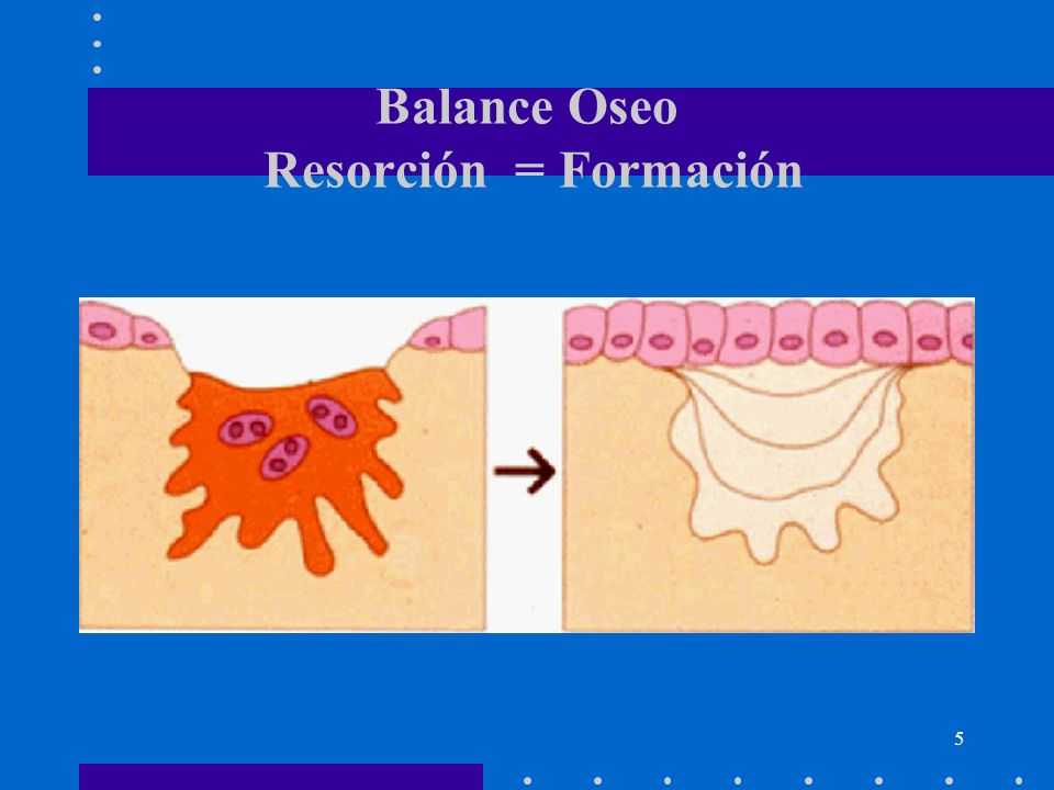 Balance Oseo Resorción = Formación