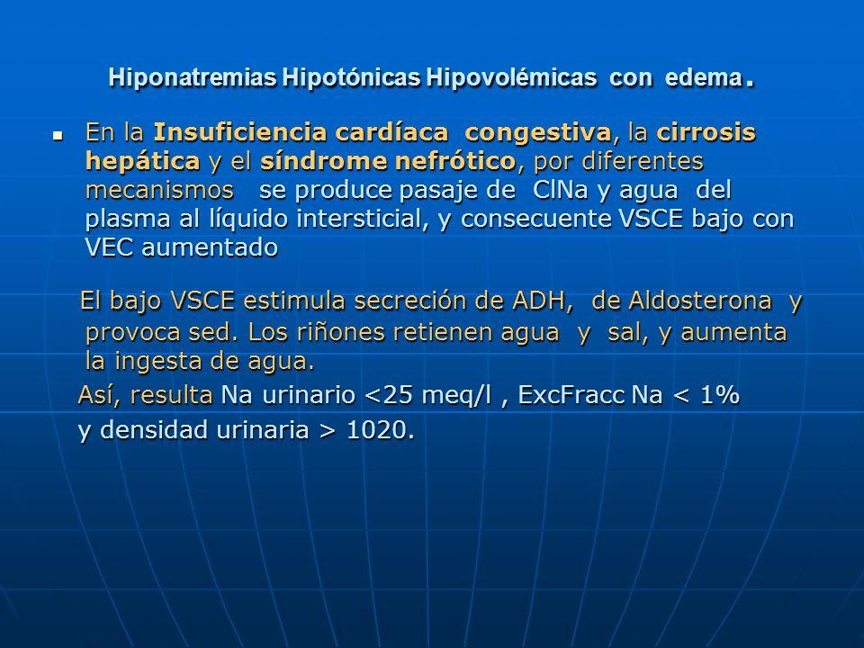 Hiponatremias Hipotónicas Hipovolémicas con edema.
