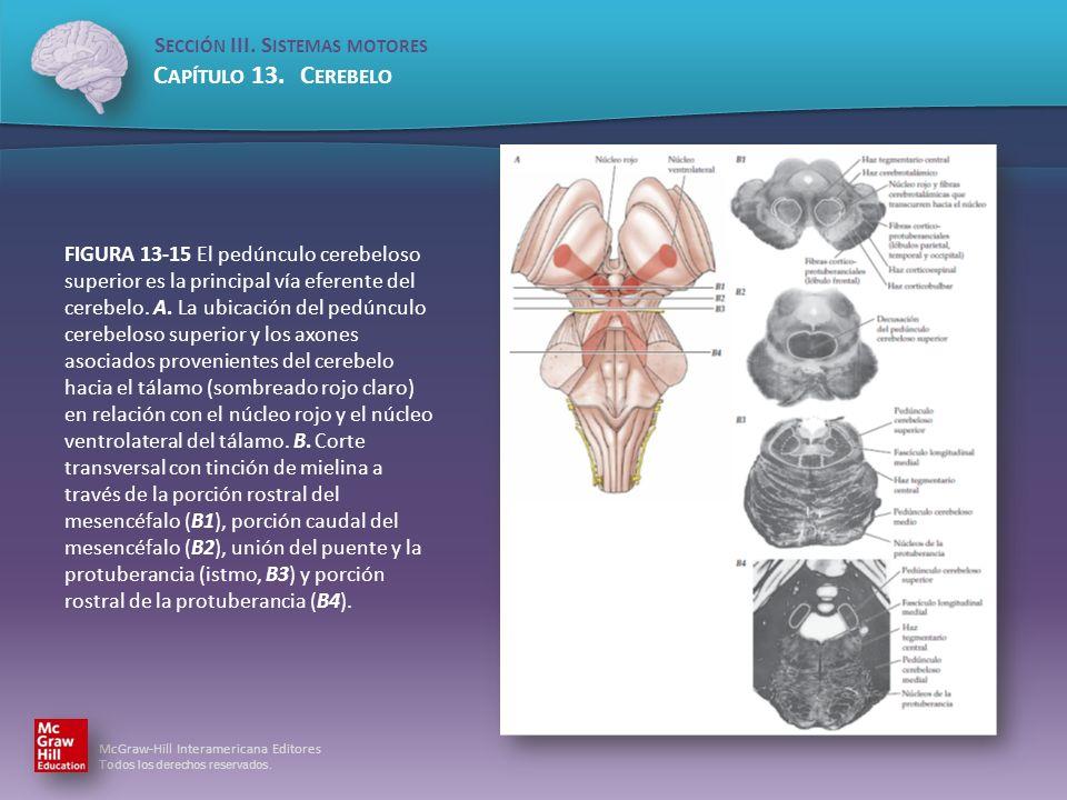 FIGURA 13-15 El pedúnculo cerebeloso superior es la principal vía eferente del cerebelo.