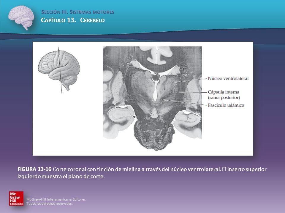 FIGURA 13-16 Corte coronal con tinción de mielina a través del núcleo ventrolateral.