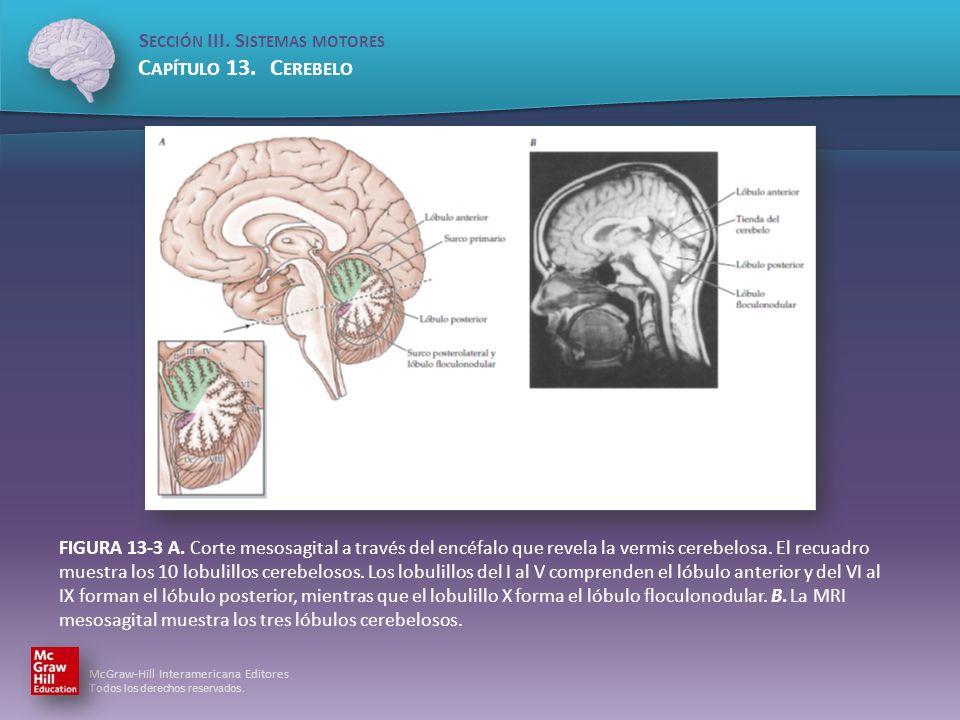 FIGURA 13-3 A. Corte mesosagital a través del encéfalo que revela la vermis cerebelosa.