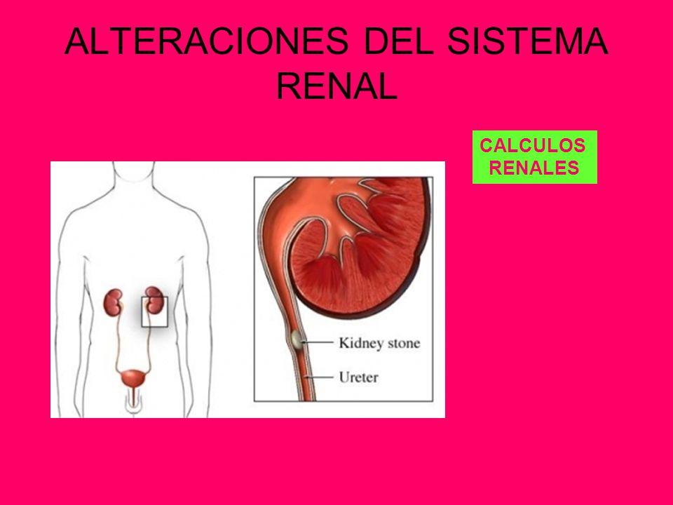 ALTERACIONES DEL SISTEMA RENAL
