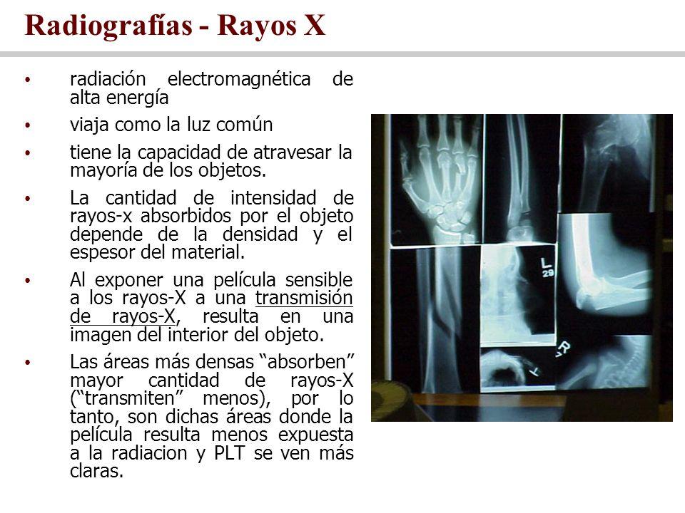 Radiografías - Rayos X radiación electromagnética de alta energía