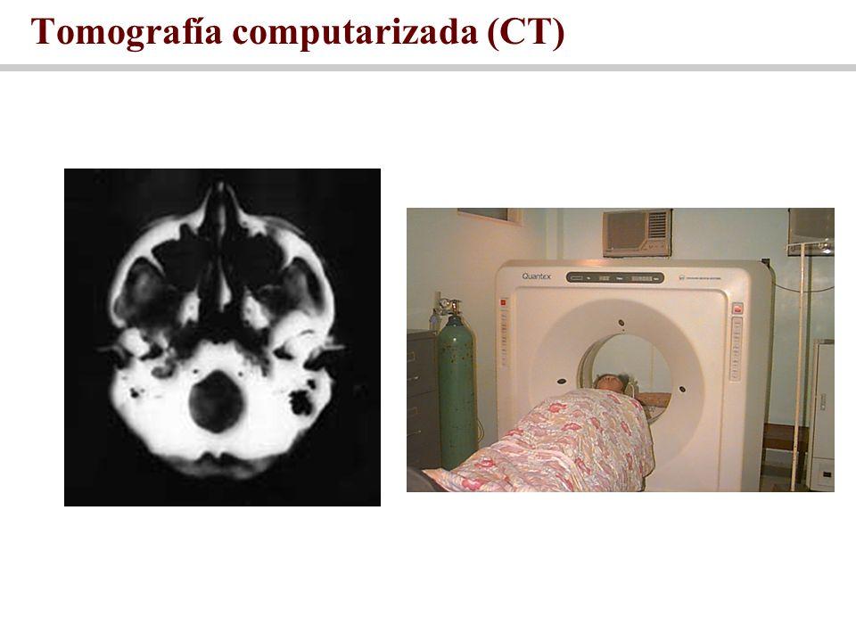 Tomografía computarizada (CT)