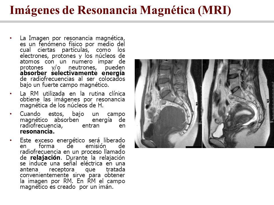 Imágenes de Resonancia Magnética (MRI)