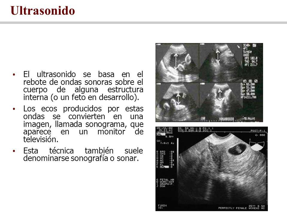 Ultrasonido El ultrasonido se basa en el rebote de ondas sonoras sobre el cuerpo de alguna estructura interna (o un feto en desarrollo).