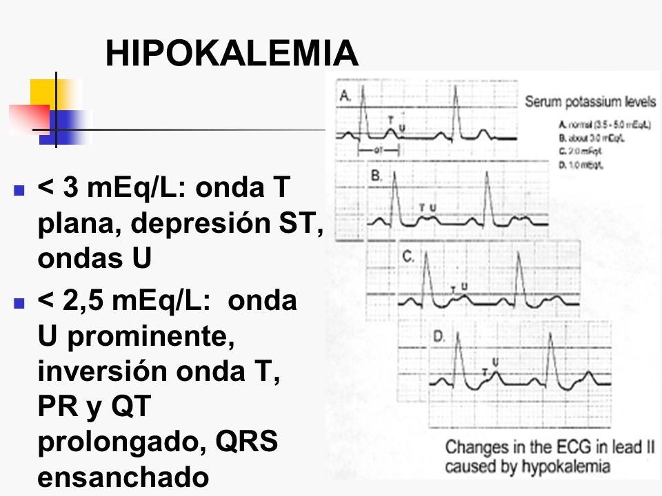 HIPOKALEMIA < 3 mEq/L: onda T plana, depresión ST, ondas U