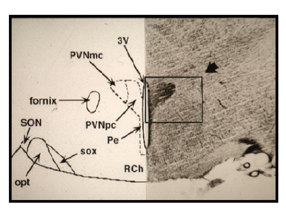 La diapositiva ilustra imágenes de un corte coronal del PVN de rata