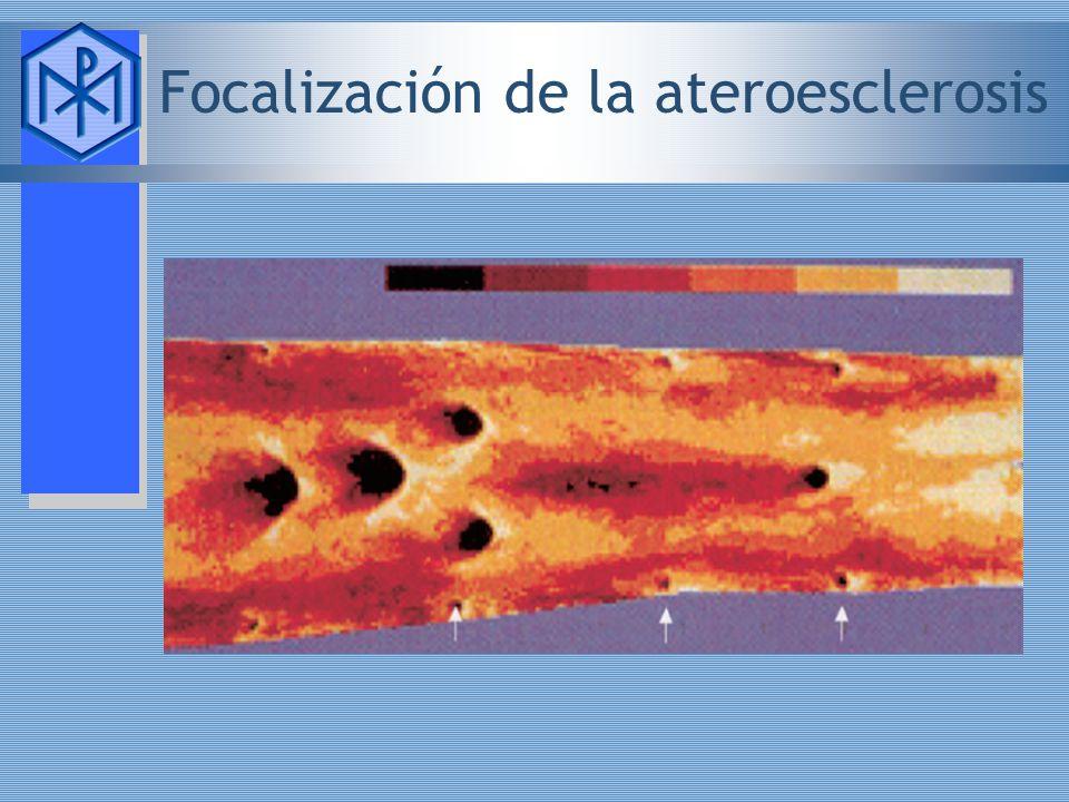 Focalización de la ateroesclerosis