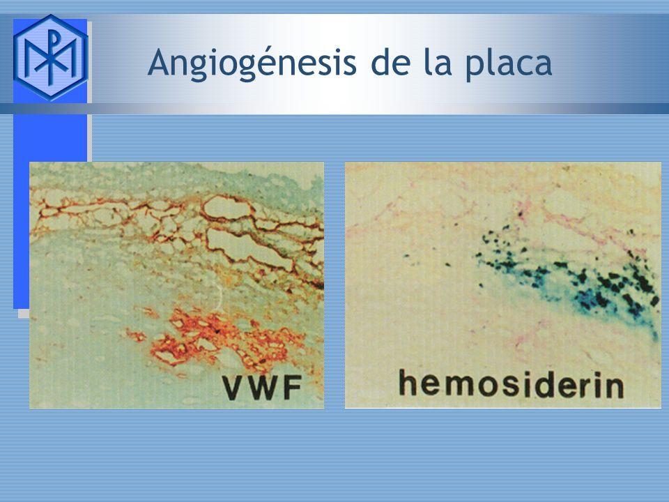 Angiogénesis de la placa