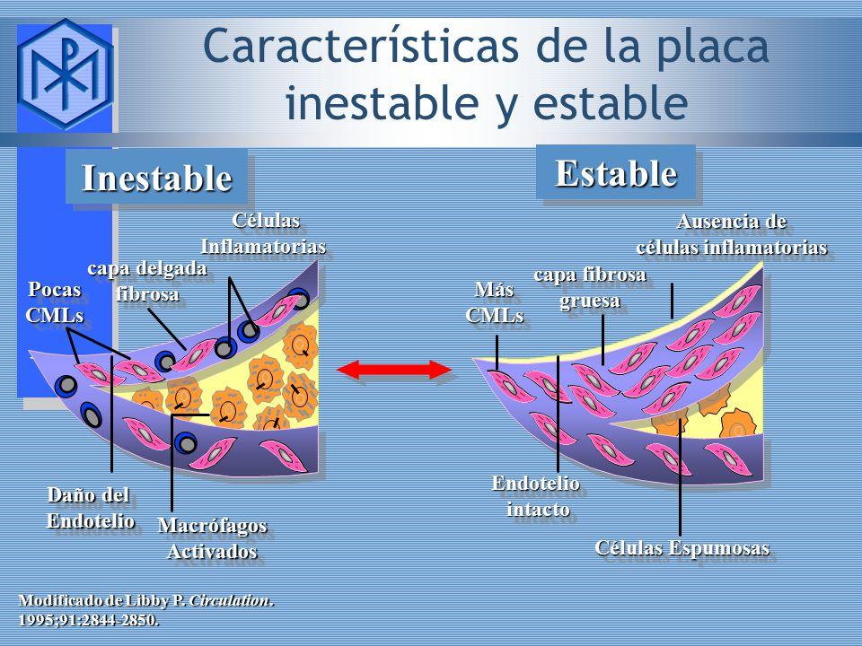 Características de la placa inestable y estable