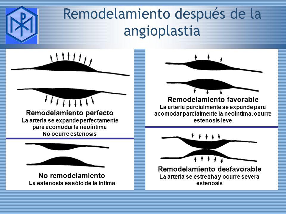 Remodelamiento después de la angioplastia