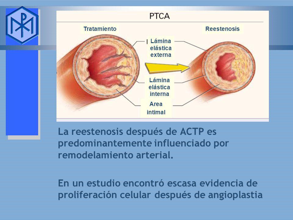 Tratamiento Reestenosis. Lámina. elástica. externa. Lámina. elástica. interna. Area intimal.