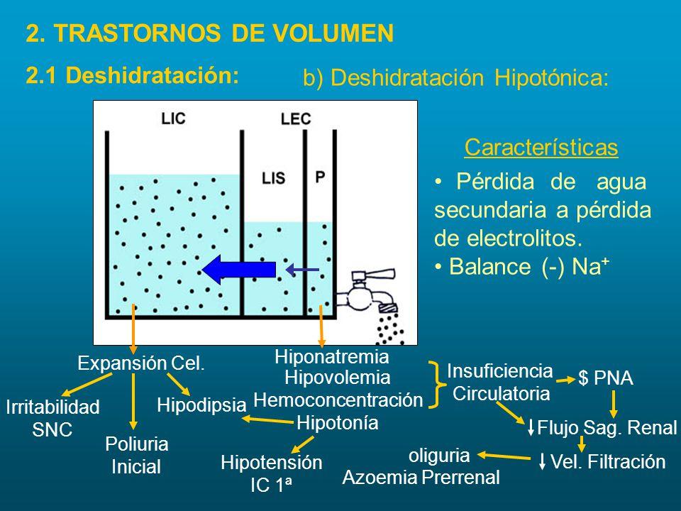 2. TRASTORNOS DE VOLUMEN 2.1 Deshidratación:
