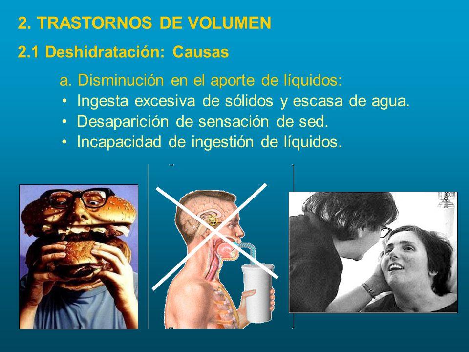 2. TRASTORNOS DE VOLUMEN 2.1 Deshidratación: Causas