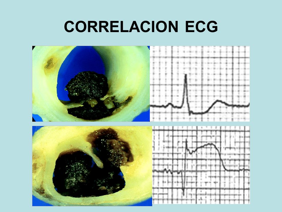 CORRELACION ECG