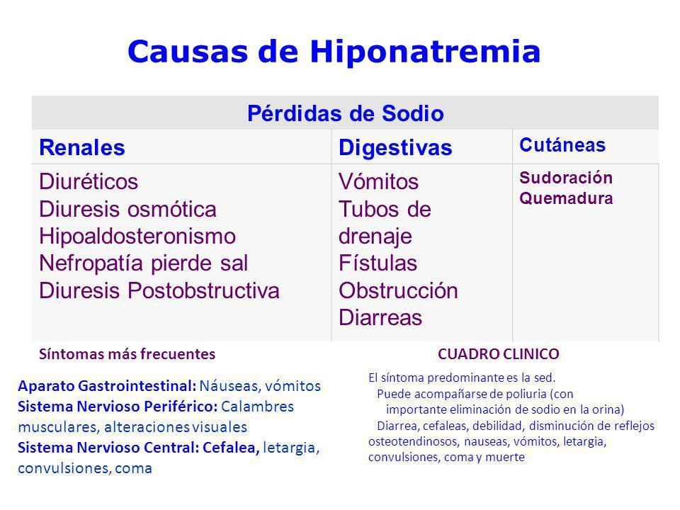 Causas de Hiponatremia