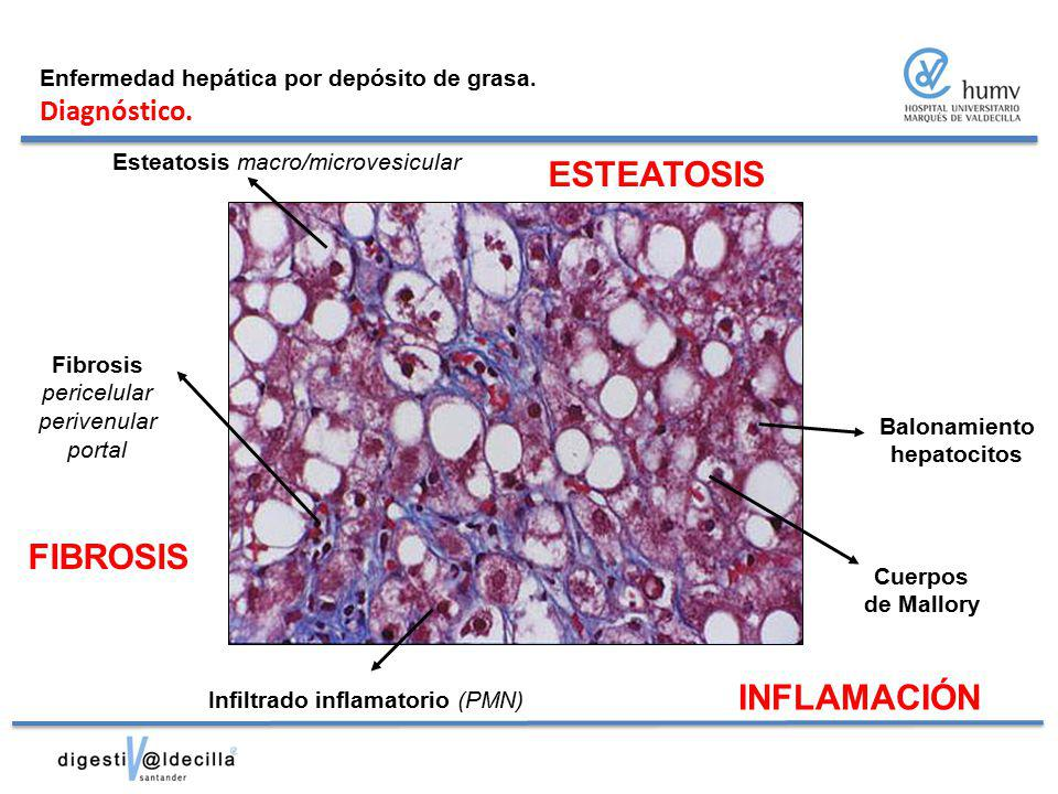 ESTEATOSIS FIBROSIS INFLAMACIÓN Diagnóstico.