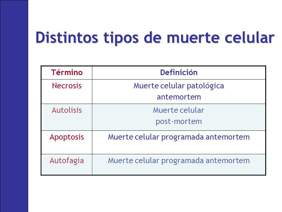 Distintos tipos de muerte celular