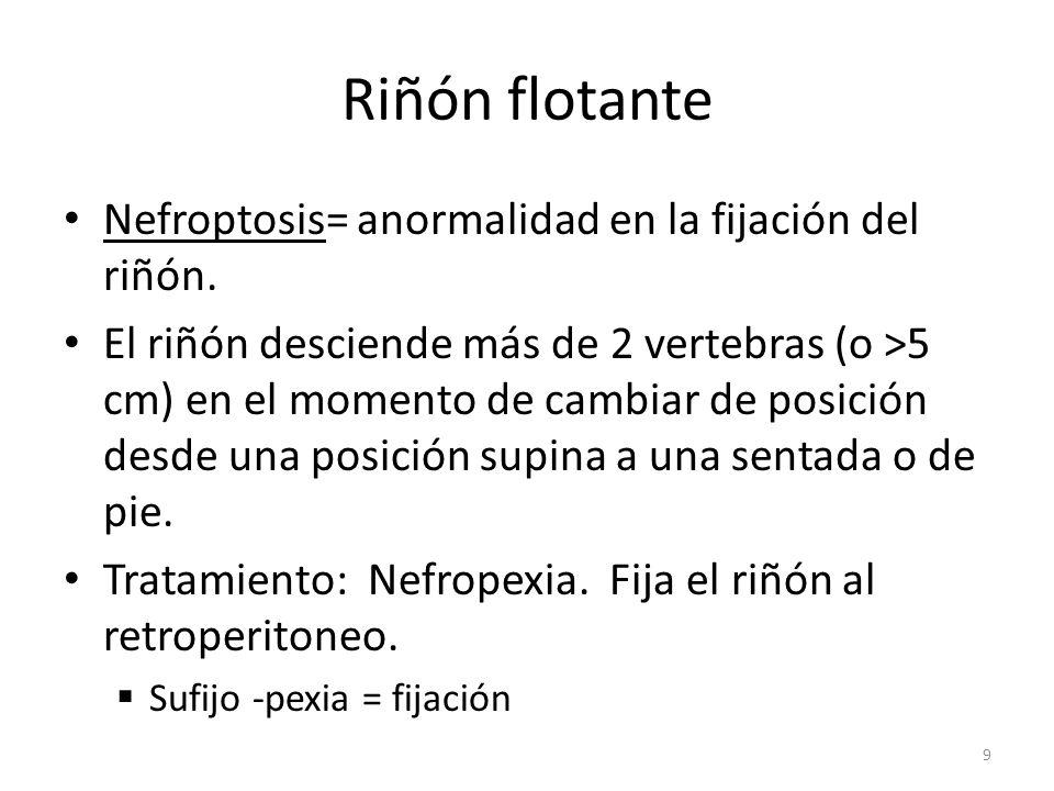 Riñón flotante Nefroptosis= anormalidad en la fijación del riñón.