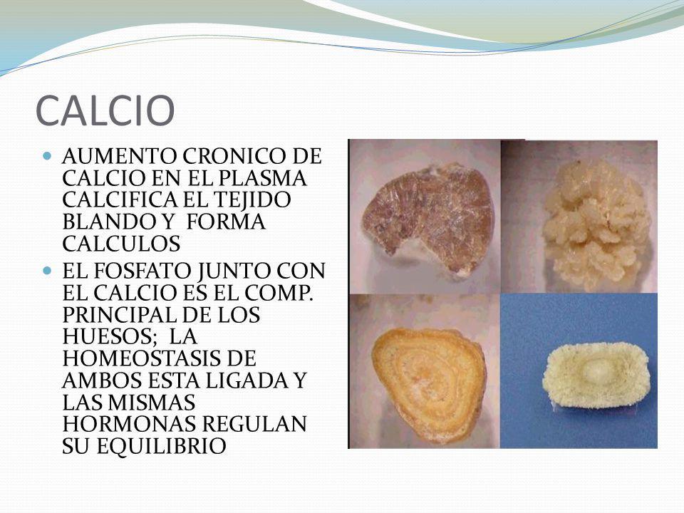 CALCIO AUMENTO CRONICO DE CALCIO EN EL PLASMA CALCIFICA EL TEJIDO BLANDO Y FORMA CALCULOS.