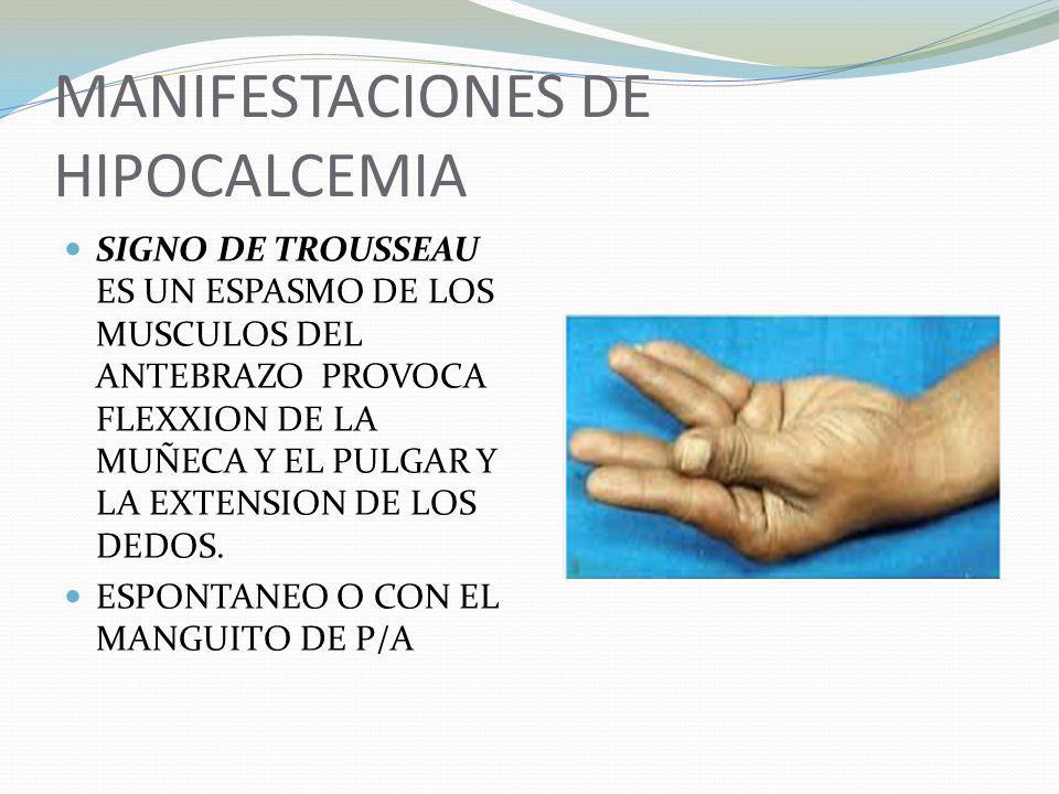 MANIFESTACIONES DE HIPOCALCEMIA