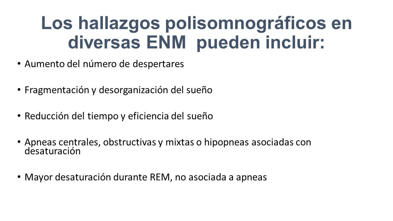 Los hallazgos polisomnográficos en diversas ENM pueden incluir: