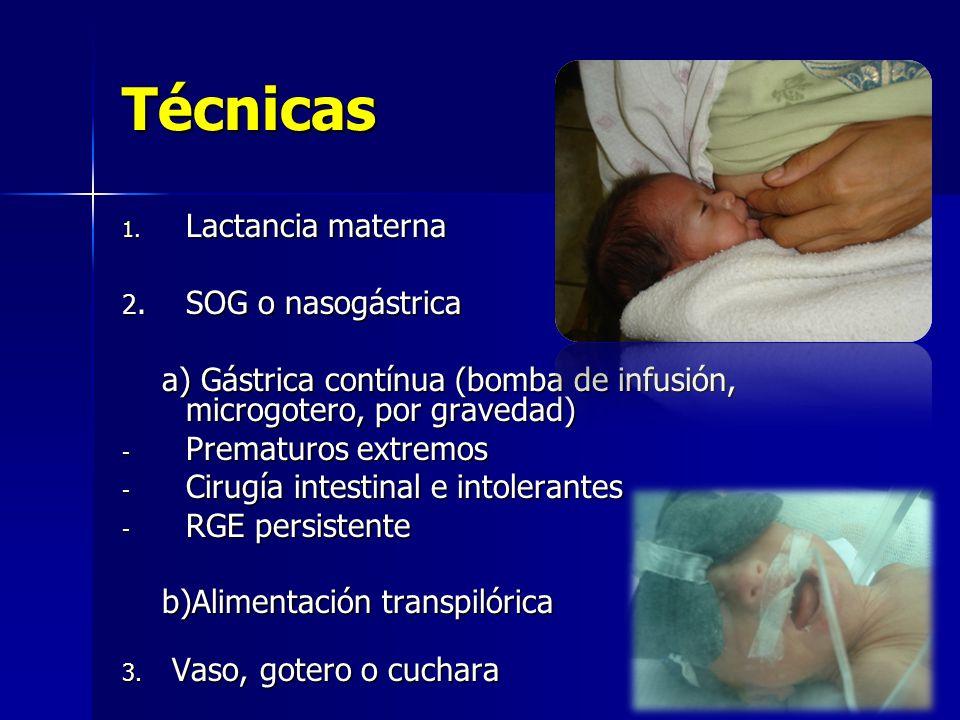 Técnicas Lactancia materna