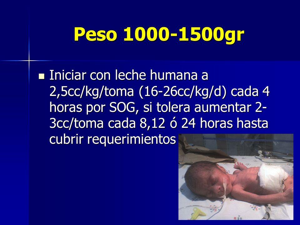 Peso 1000-1500gr