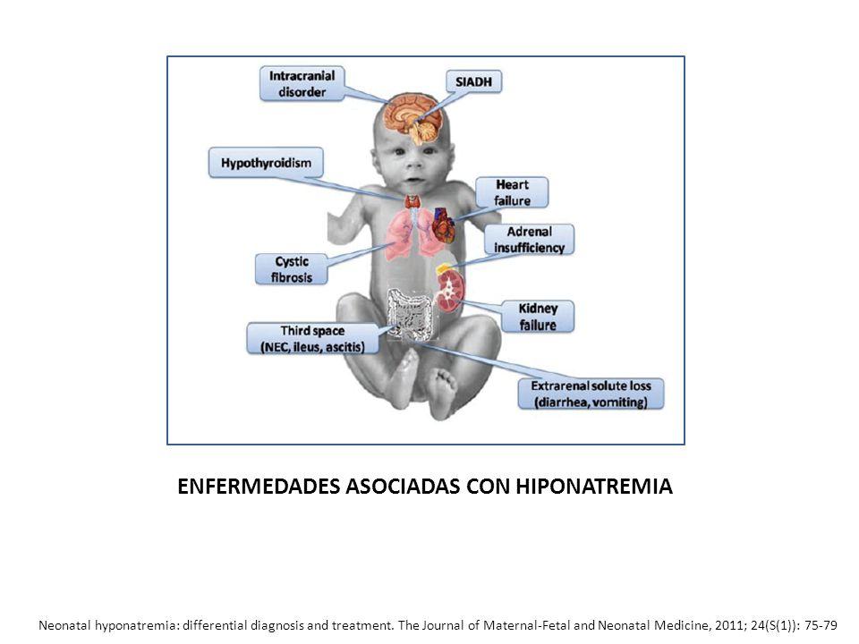 ENFERMEDADES ASOCIADAS CON HIPONATREMIA