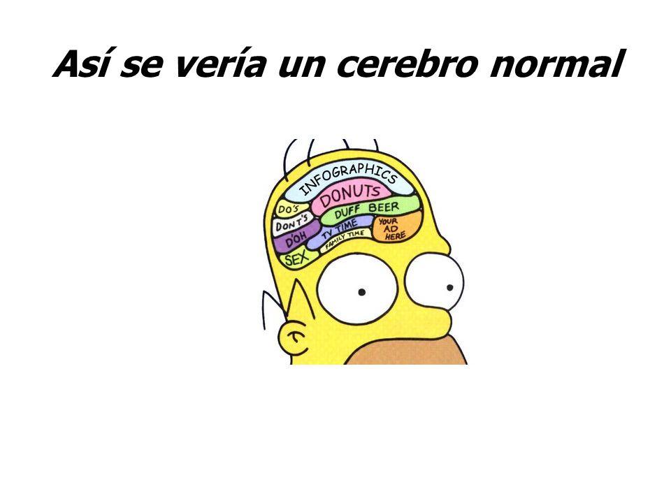 Así se vería un cerebro normal