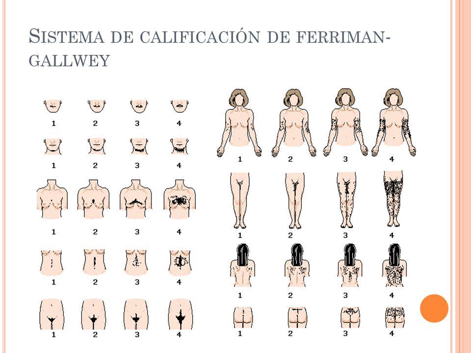 Sistema de calificación de ferriman-gallwey
