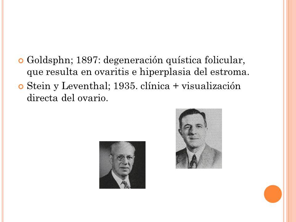 Goldsphn; 1897: degeneración quística folicular, que resulta en ovaritis e hiperplasia del estroma.