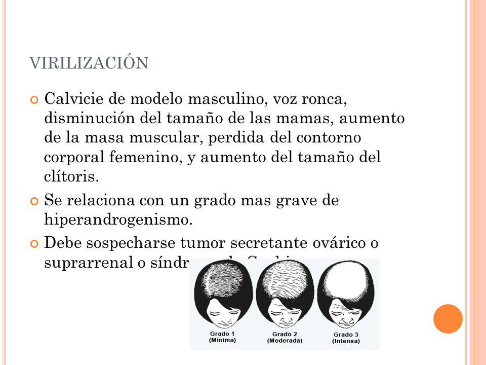 virilización